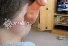 Photo of Bebeğin Kulak Arkasında Neden Şişlik Olur