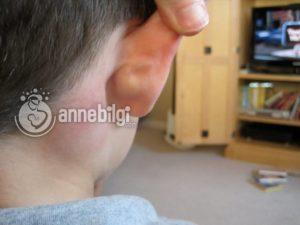 bebeğin kulak arkasında neden şişlik olur