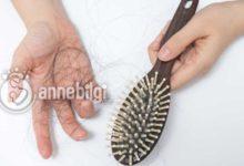 doğum sonrası saç dökülmesi nasıl geçer