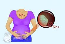 gebelikte kan uyuşmazlığı tedavisi