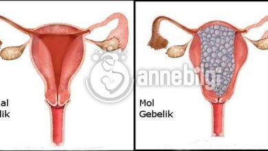 Photo of Mol Gebelik